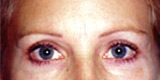 Eyelid Surgery - Before